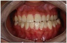 正顎手術,戽斗,齒顎矯正3