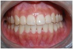正顎手術,戽斗,齒顎矯正5