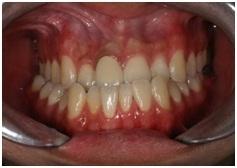 正顎手術,戽斗,齒顎矯正7