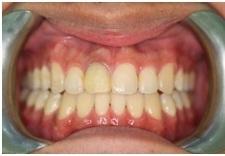 正顎手術,戽斗,齒顎矯正9