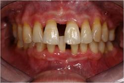 牙周病,牙齒矯正3