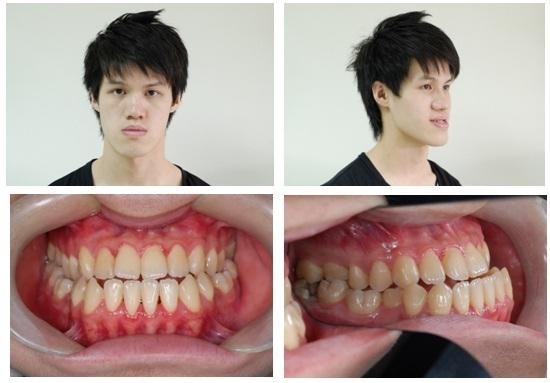 正顎手術,戽斗,矯正
