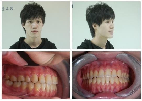 正顎手術,戽斗,矯正2