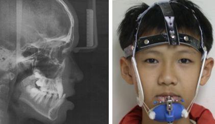 戽斗,正顎手術,案例