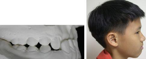 戽斗,正顎手術,案例3