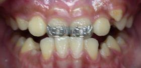 戽斗,正顎手術,案例5