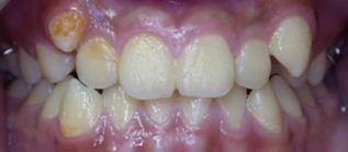 戽斗,正顎手術,案例6