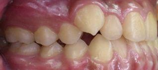 戽斗,正顎手術,案例7