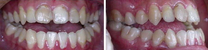 齒顎矯正,牙齒矯正,案例2