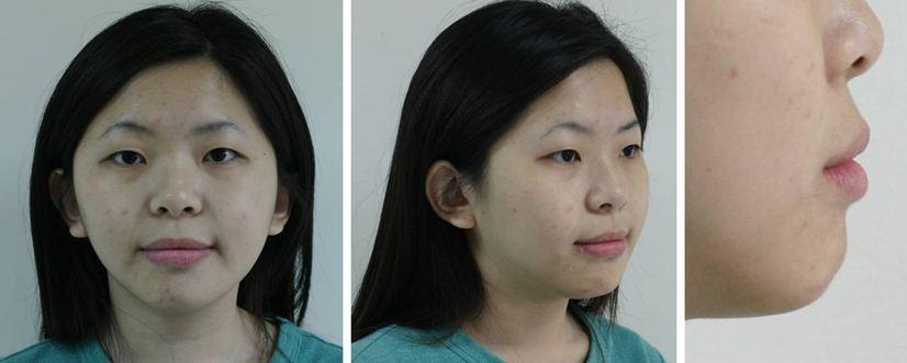 齒顎矯正,牙齒矯正,案例3