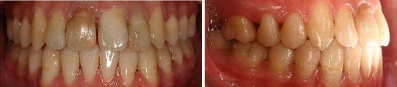 齒顎矯正,牙齒矯正,案例4