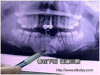 兒童矯正,牙齒矯正2