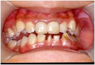 兒童矯正,牙齒矯正3