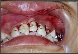 自體齒移植2
