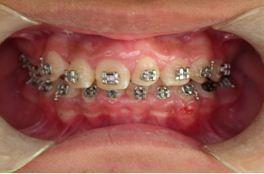 自體齒移植3