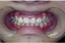 自體齒移植4