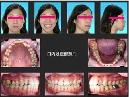 牙齒矯正,治療前檢查