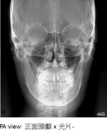 牙齒矯正,治療前檢查7