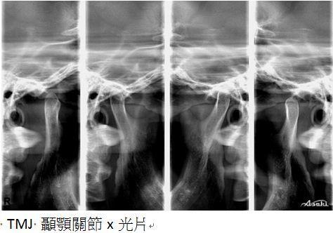 牙齒矯正,治療前檢查9
