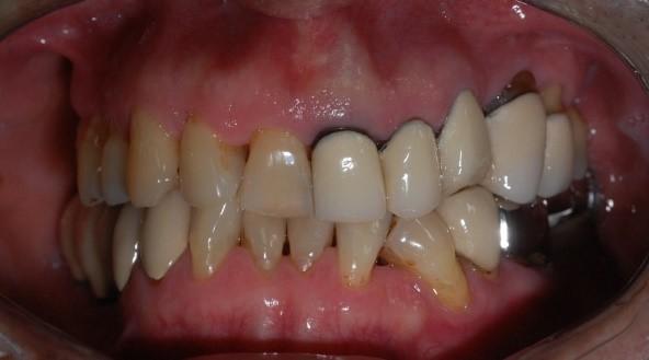 成人植牙矯正,牙齒矯正10