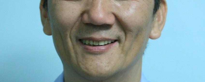 成人植牙矯正,牙齒矯正