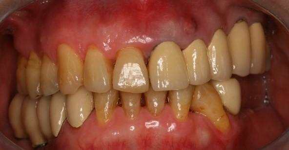 成人植牙矯正,牙齒矯正12