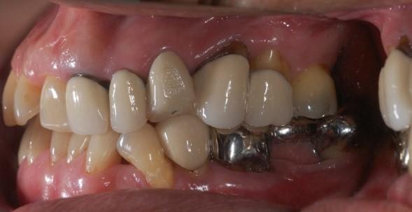 成人植牙矯正,牙齒矯正2