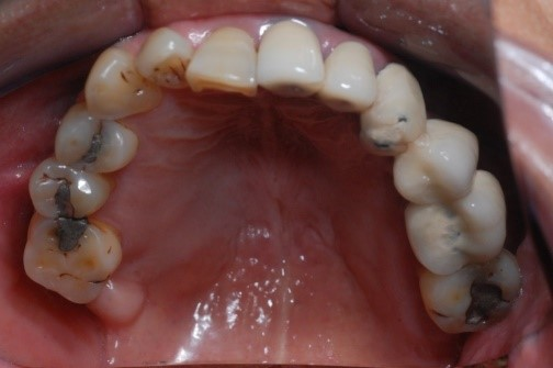 成人植牙矯正,牙齒矯正3
