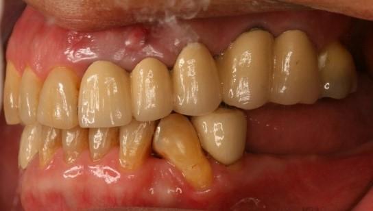 成人植牙矯正,牙齒矯正6