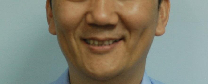 成人植牙矯正,牙齒矯正9