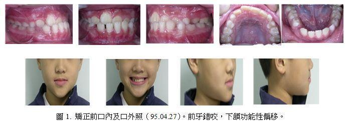 牙齒矯正,案例,前牙
