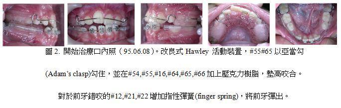 牙齒矯正,案例,前牙2