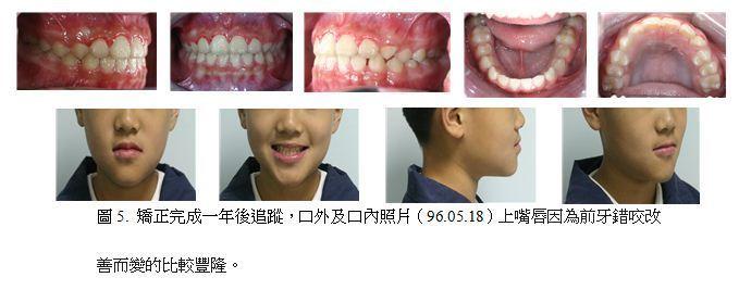 牙齒矯正,案例,前牙5