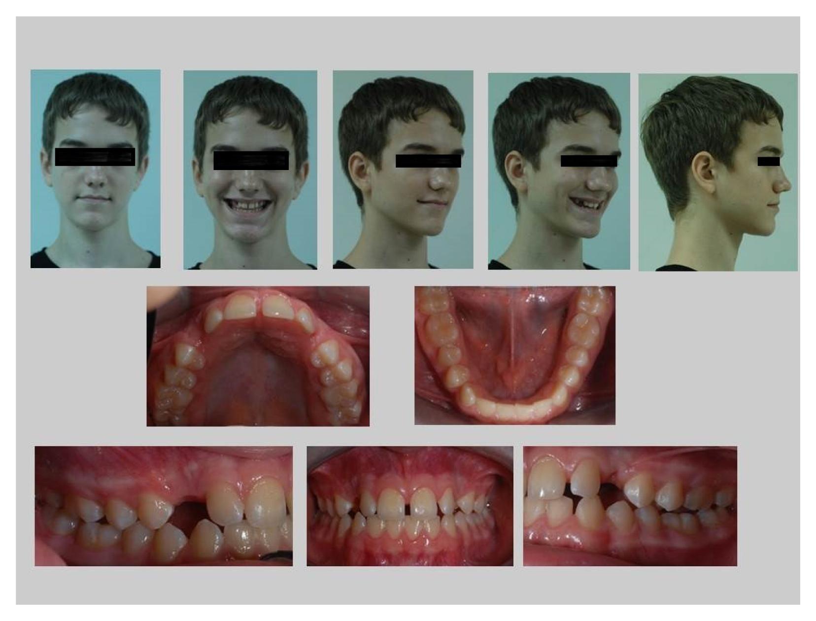 牙齒矯正案例,埋伏齒-1