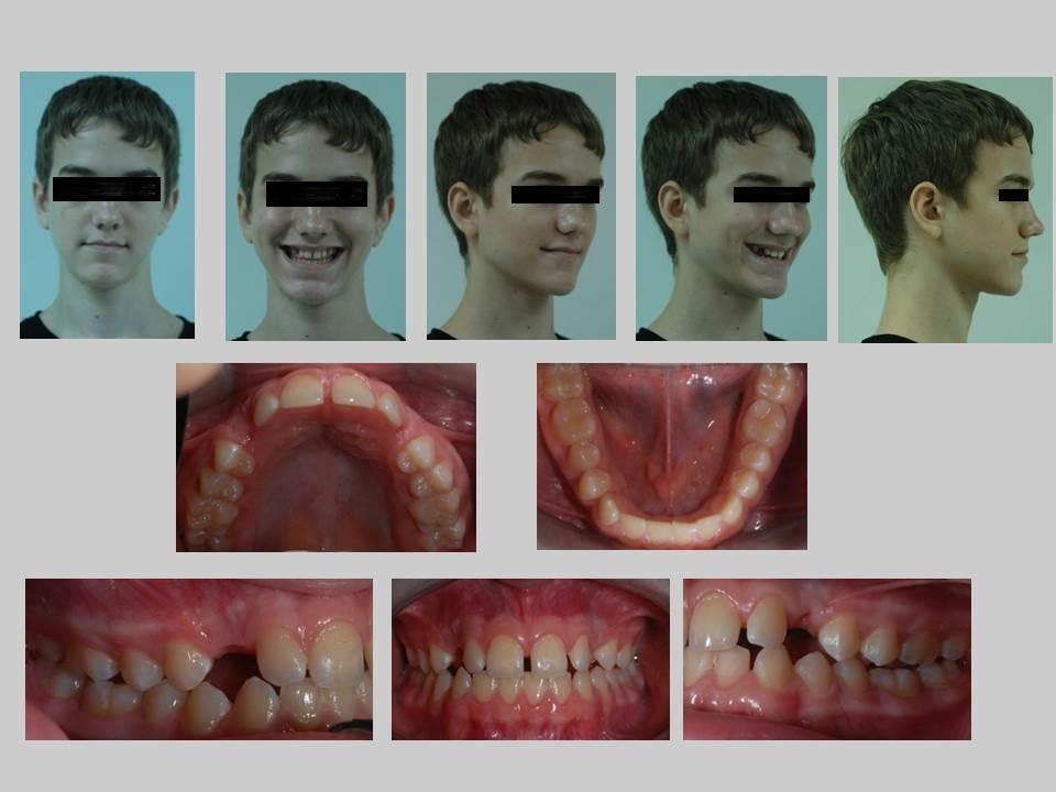 牙齒矯正案例,埋伏齒