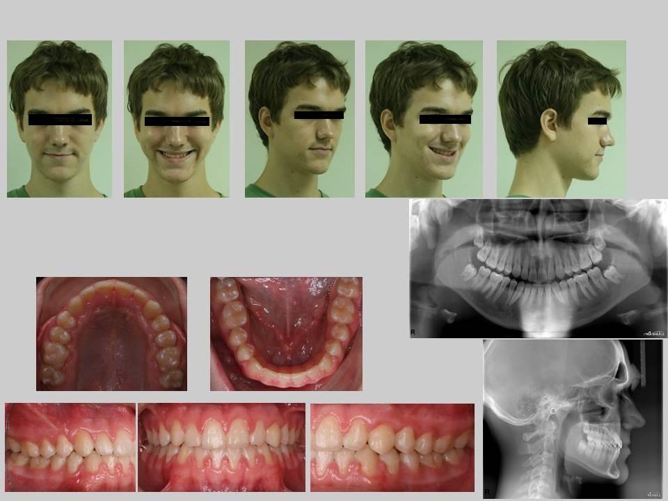 牙齒矯正案例,埋伏齒3