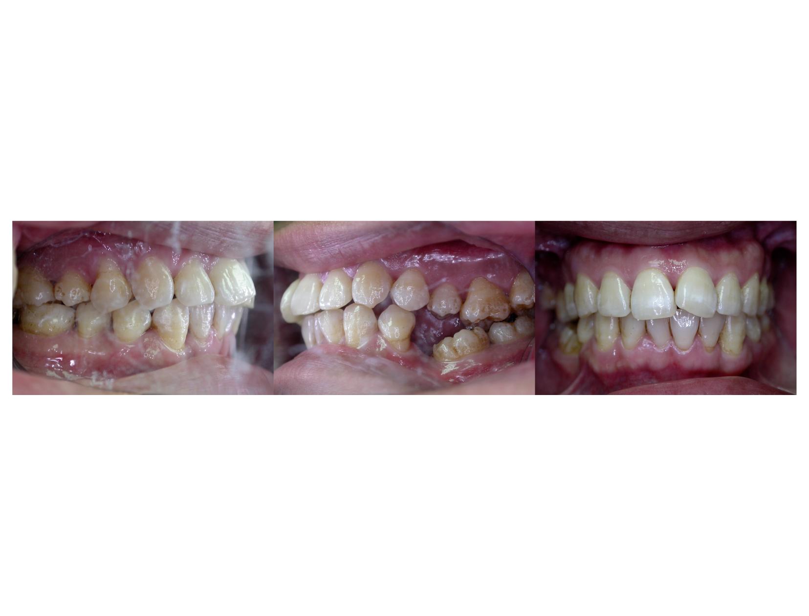 牙齒矯正,案例,牙齒亂-1