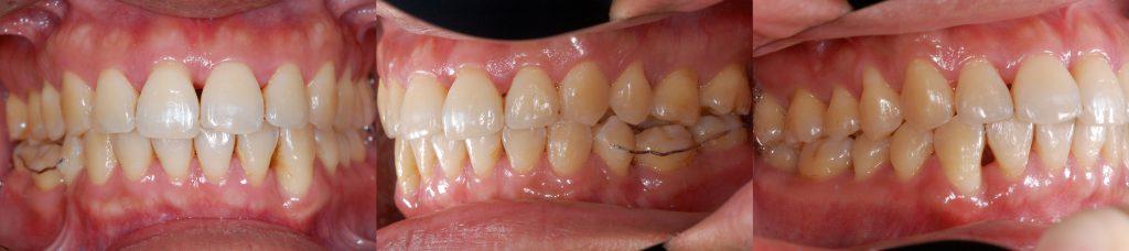 牙齒矯正,案例,牙齒亂6