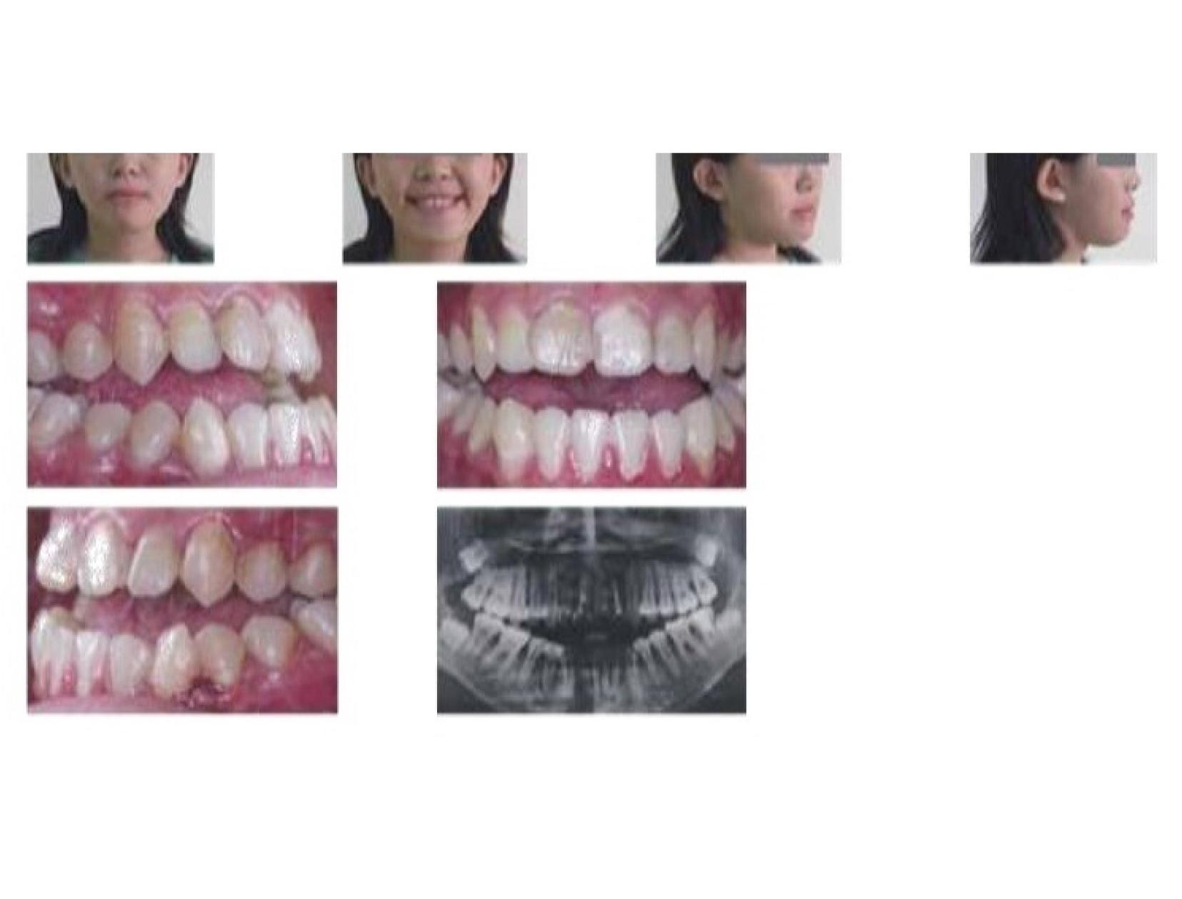 牙齒矯正,正顎手術,案例-1