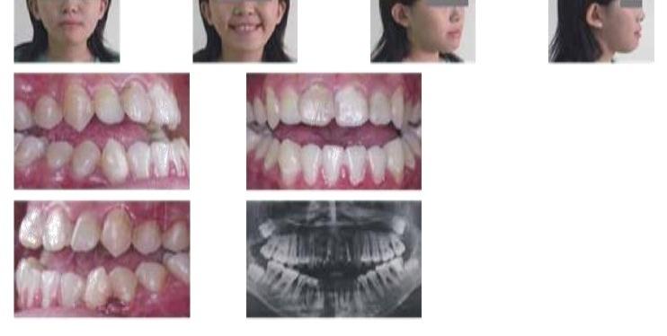 牙齒矯正,正顎手術,案例
