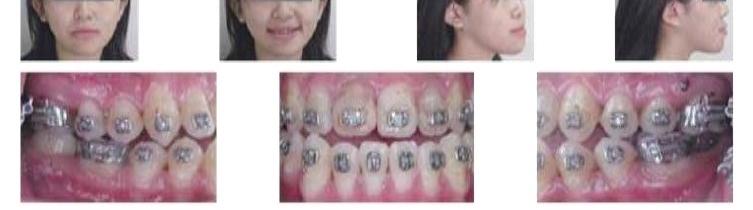 牙齒矯正,正顎手術,案例2