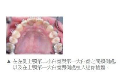 牙齒矯正,正顎手術,案例3