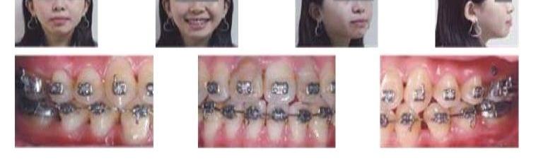 牙齒矯正,正顎手術,案例4