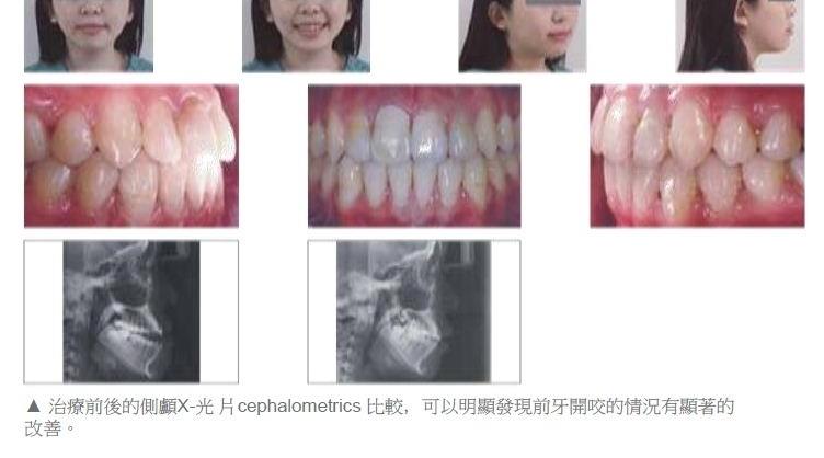 牙齒矯正,正顎手術,案例5