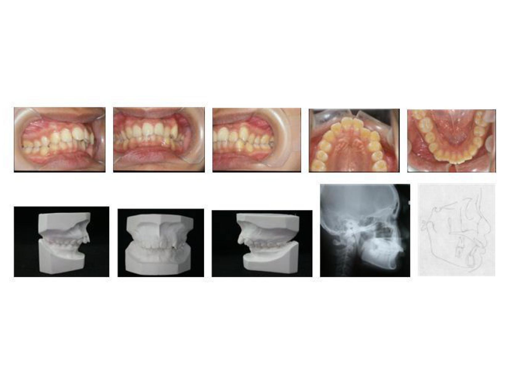 牙齒矯正,犬齒,案例-1