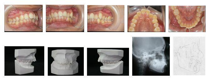牙齒矯正,犬齒,案例