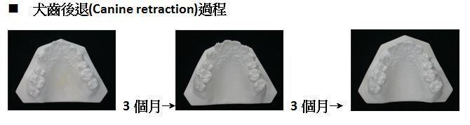 牙齒矯正,犬齒,案例3