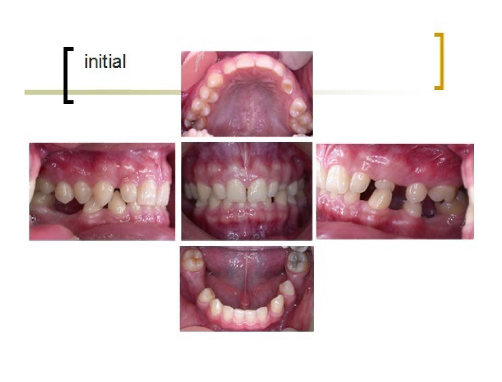 牙齒矯正,跨科治療,案例-1