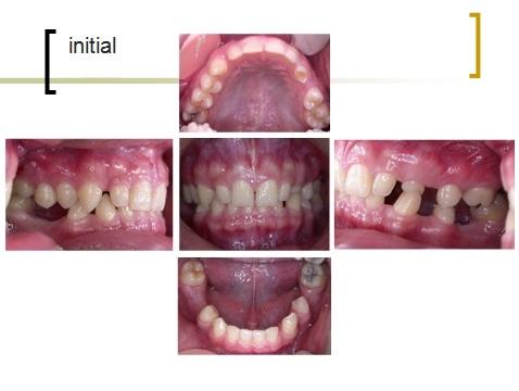 牙齒矯正,跨科治療,案例