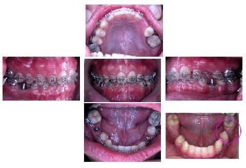 牙齒矯正,跨科治療,案例2